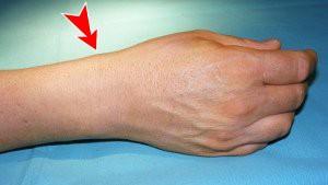 Aspect caractéristique de la tendinite de De Quervain : tuméfaction sous cutanée radiale, sur le côté du poignet traduisant de l'inflammation des tendons