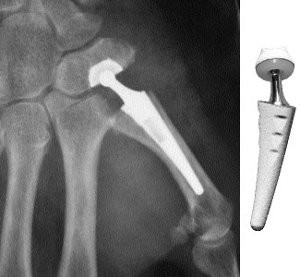 le traitement définitif de la rhizarthrose : la prothèse trapézo-métacarpienne