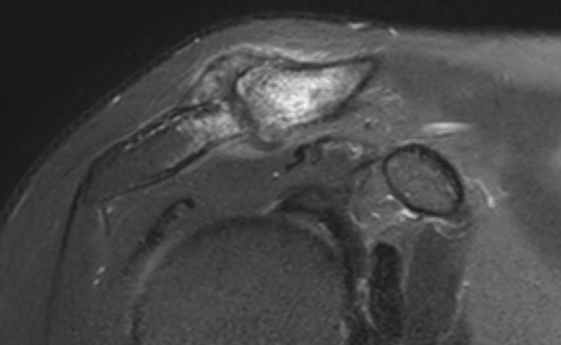 L'arthrose AC vue sur une IRM