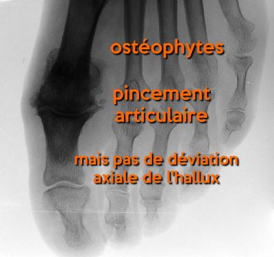 radiographie d'un Hallux Rigidus