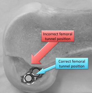 anatomie LCAE